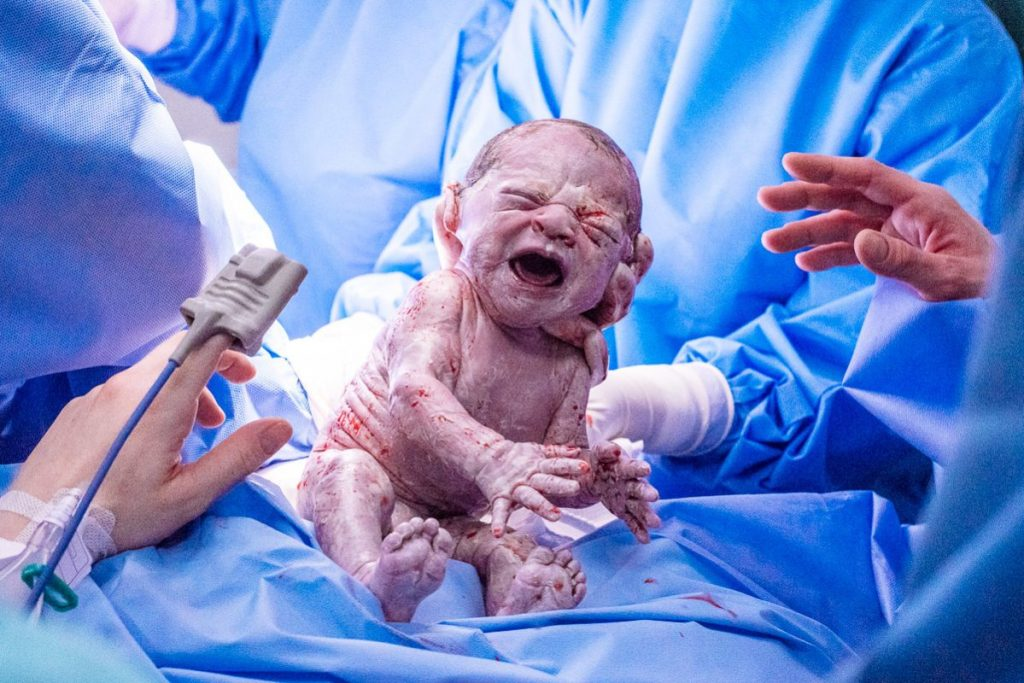 5 fotos que não podem faltar no dia do seu parto publicado no portal Gestante Rio e no site da fotógrafa de famílias e partos Claudia Ruiz Rio de Janeiro RJ